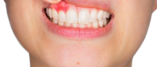 Are you worried about developing gum disease? Do you have excessive staining?