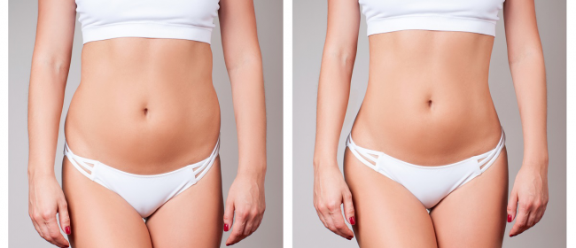 Knowing more about CoolSculpting